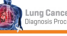 R0 - Lung Cancer-01