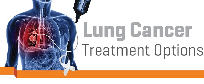 IMU NEWS | Lung cancer : treatment options