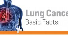 R0 - Lung Cancer-03