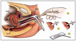 Pic 1 pap smear