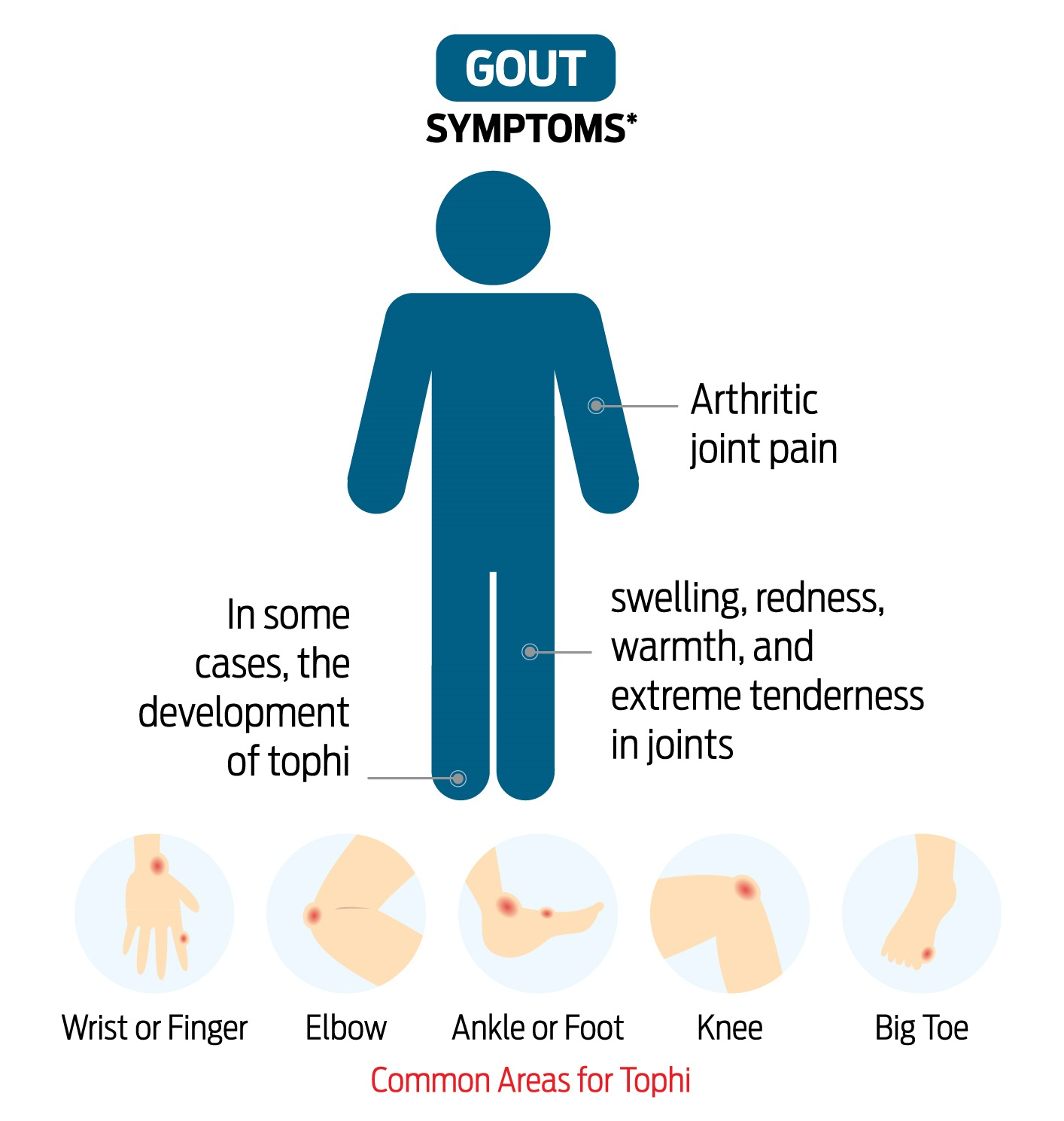 case press gouty arthritis Gout can cause serious pain man has world's first case of super gout is a type of arthritis that happens when you have too much uric acid in your blood and it.